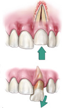 Traumatic Tooth Injury in Houston